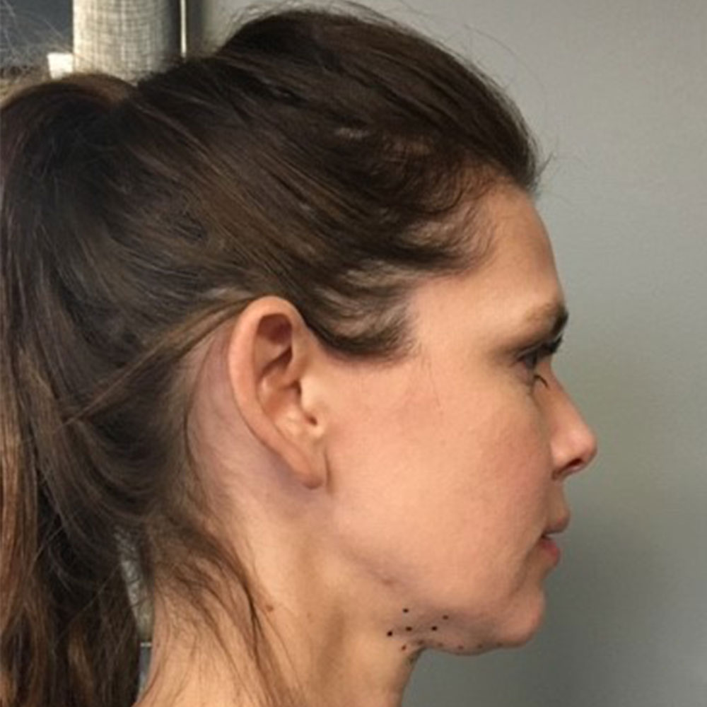 kybella-2nd-patient-before-updated