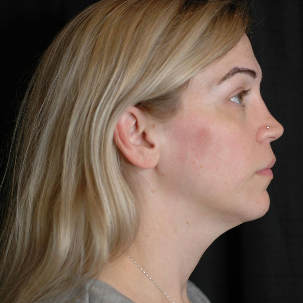 kybella-side-after-3-treatment-updated