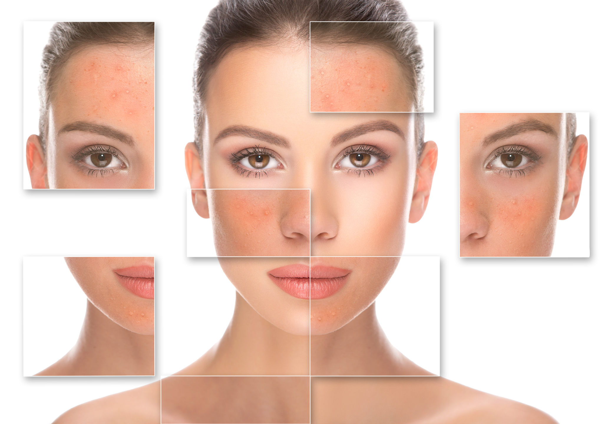 Close up of woman before and after rosacea treatment